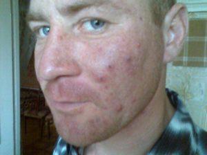 Как очистить кожу от прыщей и угрей
