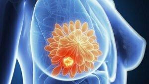 патологии молочной железы. Мастопатия