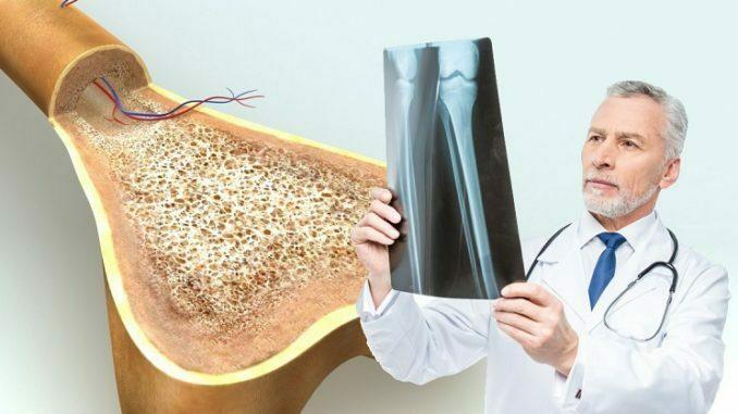 кальций и здоровье костей