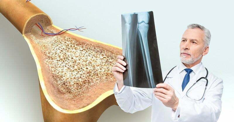 Кальций при остеохондрозе: 5 витаминов для лечения недуга